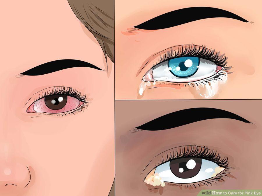 Thói quen rất nhiều người mắc phải nhưng gây ra tới 4 cái hại cho mắt - Ảnh 4.