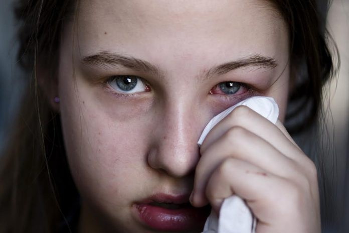 Thói quen rất nhiều người mắc phải nhưng gây ra tới 4 cái hại cho mắt - Ảnh 5.