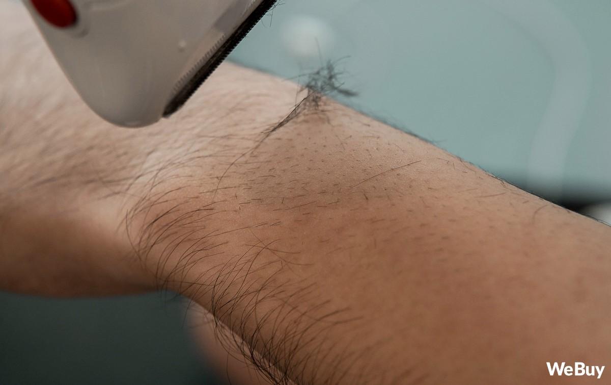 Lần đầu trải nghiệm máy cạo nhổ lông: Có thực sự hữu dụng với nam nhân, nữ nhi có chân tay như rừng rậm Amazon? - Ảnh 7.