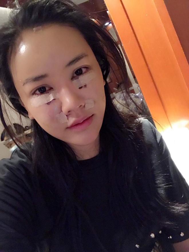 """Nhan sắc hiện tại của những sao Việt công khai """"đập đi xây lại"""": Người được khen ngợi, người gây sốc vì gương mặt biến dạng - Ảnh 7."""