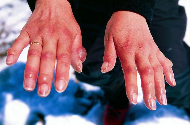 Những bệnh nguy hiểm nhưng rất dễ mắc phải khi trời lạnh - Ảnh 4.