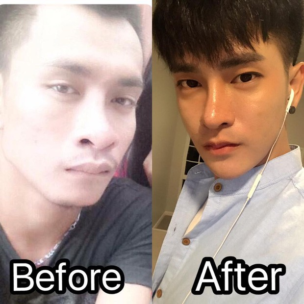 Sửa mặt thành nghiện, Lệ Rơi phiên bản Thái Lan chi bộn tiền, phẫu thuật 30 lần để giống soái ca Hàn Quốc - Ảnh 1.