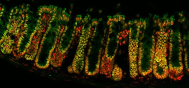 Vi sinh vật trong ruột có thể hack quyền điều khiển bộ gen của bạn, đây là cách chúng làm điều đó - Ảnh 1.