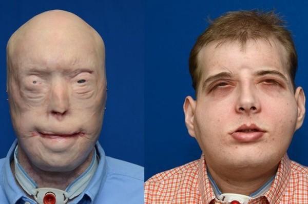 Các bác sĩ Pháp vừa làm nên lịch sử, khi cấy ghép khuôn mặt lần thứ hai cho cùng một người - Ảnh 1.