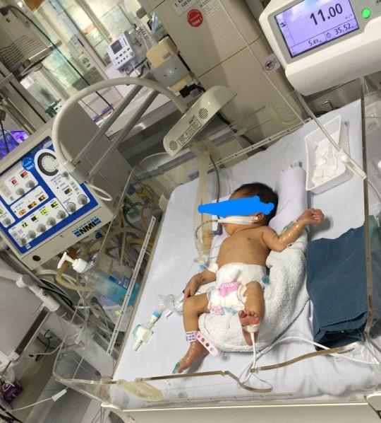 Bé gái 32 tuần tuổi bị mẹ phá thai để chối bỏ được nhóm thiện nguyện khi đi nhặt xác thai nhi cứu sống - Ảnh 3.