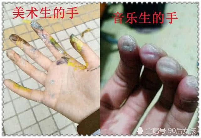 Nhìn những bàn tay chai sạn, nứt nẻ, rỉ máu này để thấy sinh viên ngành nghệ thuật khổ đến mức nào - Ảnh 7.