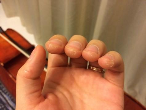 Nhìn những bàn tay chai sạn, nứt nẻ, rỉ máu này để thấy sinh viên ngành nghệ thuật khổ đến mức nào - Ảnh 3.