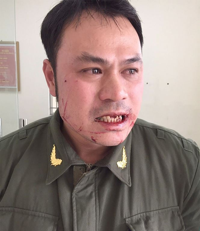 Nhân viên an ninh sân bay Nội Bài bị cò mồi taxi đánh gãy 4 răng - Ảnh 1.