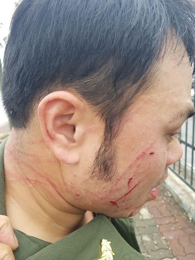 Đề nghị khởi tố cò taxi đánh nhân viên sân bay Nội Bài gãy răng - Ảnh 1.