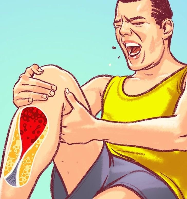 Những dấu hiệu trên cơ thể cảnh báo động mạch bị tắc nghẽn cần đặc biệt chú ý - Ảnh 1.