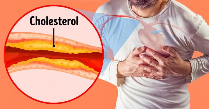 Những dấu hiệu trên cơ thể cảnh báo động mạch bị tắc nghẽn cần đặc biệt chú ý - Ảnh 2.