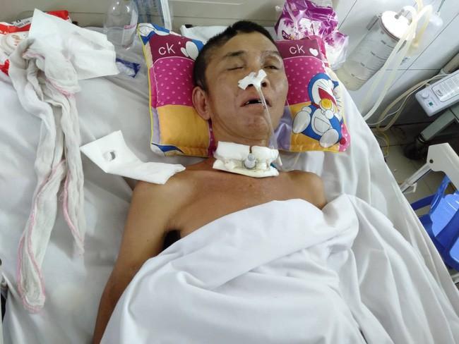 Nghệ An: Con trai 2 tuổi sợ hãi khóc thét sau 2 tháng gặp lại bố bị tai nạn giao thông - Ảnh 3.