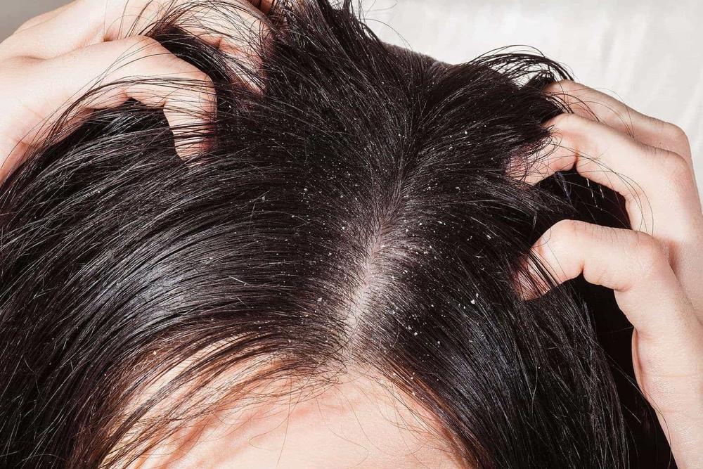 Những nguyên nhân không ngờ gây ra tình trạng nấm da đầu mà nhiều người không hề nghĩ tới - Ảnh 1.