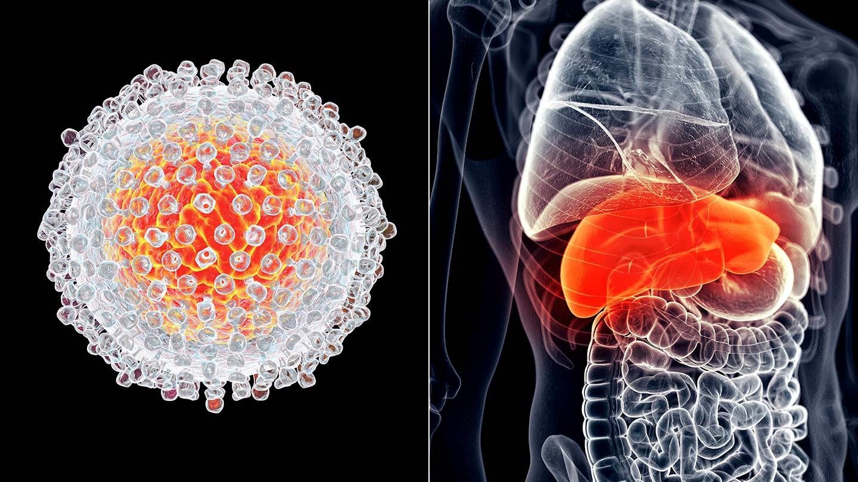 5 căn bệnh ung thư dễ mắc nhất ở cả 2 giới tại Việt Nam hiện nay, hãy phòng tránh ngay từ bây giờ - Ảnh 2.