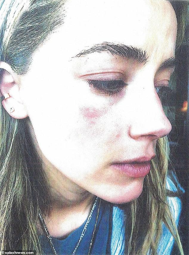 Amber Heard tố Johnny Depp hành hung cô như một con quái vật nhưng nam tài tử đáp lại bằng một điều bất ngờ - Ảnh 3.