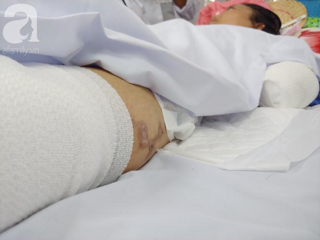 Mẹ mới sinh phải cắt cụt tứ chi sau khi bị áp xe vú: Bác sĩ sản khoa tiết lộ thông tin bất ngờ - Ảnh 6.