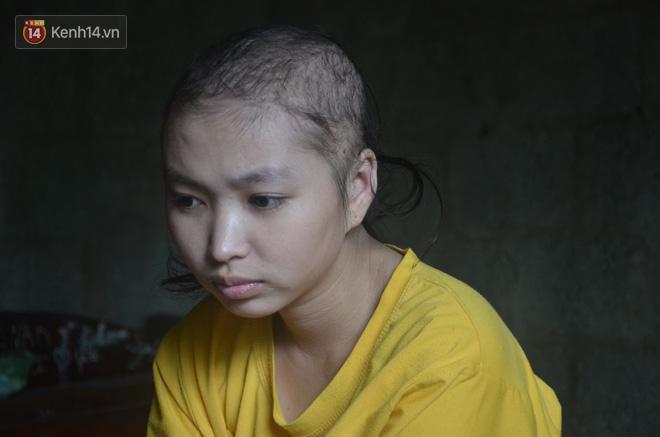 Gia cảnh bần cùng cô gái 18 tuổi mồ côi cả bố lẫn mẹ, mắc bệnh máu trắng chờ chết vì không có tiền chữa - Ảnh 4.