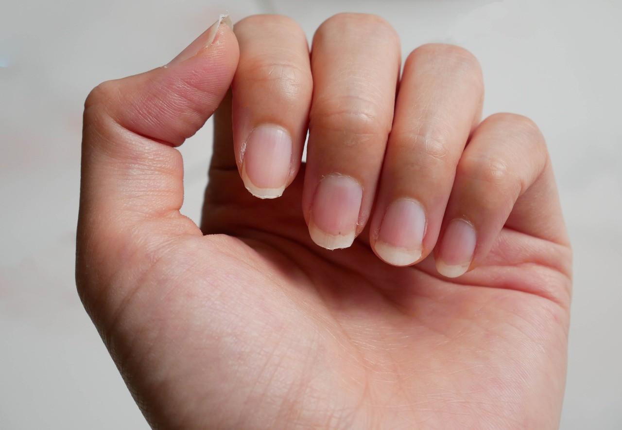 Nhìn dấu hiệu bất thường trên móng tay cũng có thể biết được bạn đang gặp phải những vấn đề sức khỏe gì - Ảnh 3.