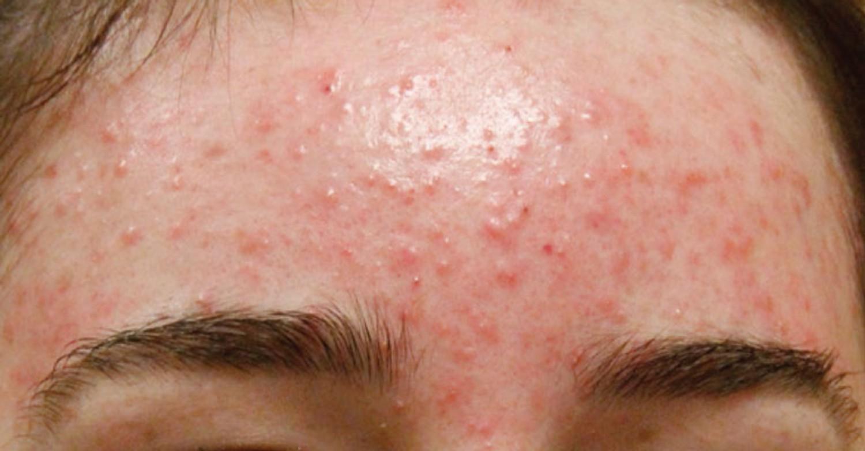 Mụn xuất hiện ở nhiều vị trí trên khuôn mặt có thể là dấu hiệu cảnh báo hàng loạt vấn đề sức khỏe nguy hại - Ảnh 5.