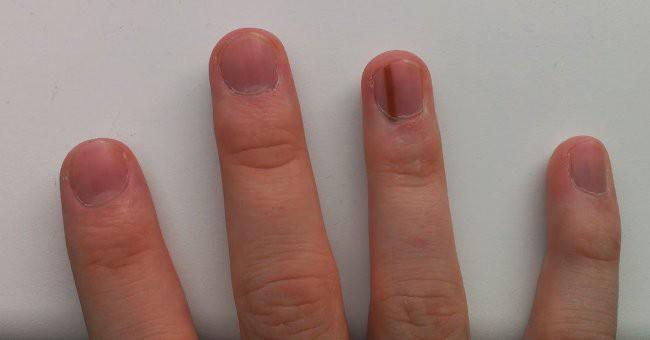 Nhìn dấu hiệu bất thường trên móng tay cũng có thể biết được bạn đang gặp phải những vấn đề sức khỏe gì - Ảnh 5.