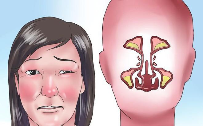 Thời tiết này rất dễ mắc phải một căn bệnh ở vùng mũi nên cần chủ động tìm hiểu để phòng tránh ngay - Ảnh 2.