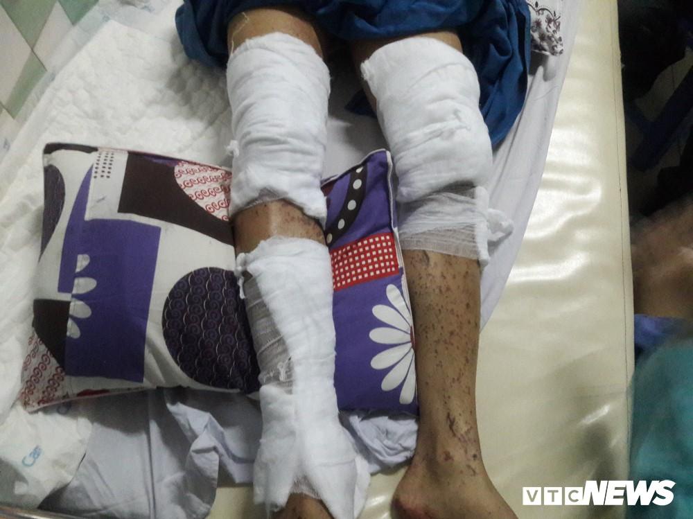 Đôi nam nữ Việt kiều kể khoảnh khắc bị tạt a xít, tấn công trong đêm - Ảnh 2.