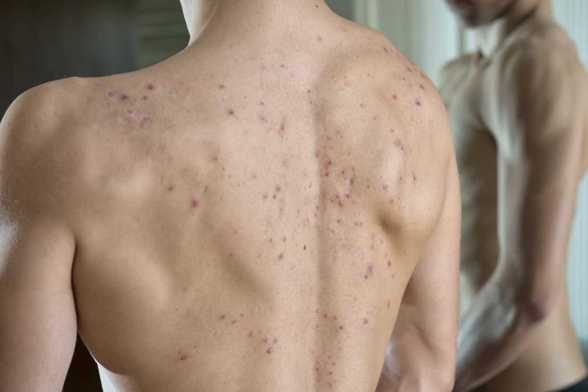 Có 5 vùng cơ thể rất dễ bị bỏ qua khi tắm khiến vi khuẩn sinh sôi khắp người bạn - Ảnh 5.