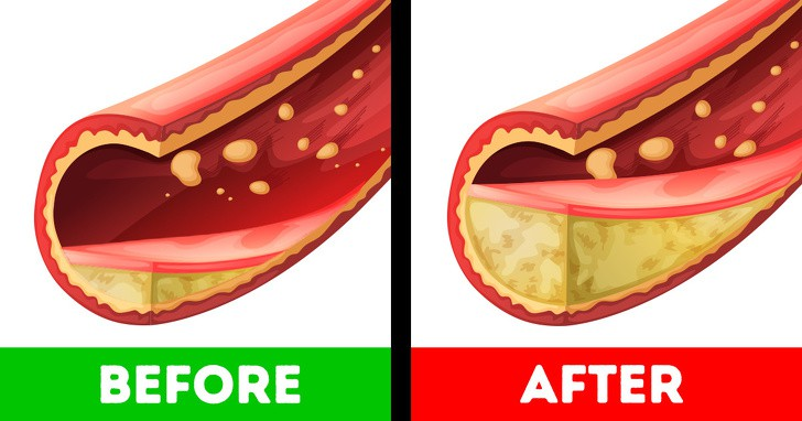 Tết ăn uống bình tĩnh thôi, vì tăng dù chỉ vài cân là cơ thể bạn sẽ gặp đủ thứ rắc rối sau đây - Ảnh 3.