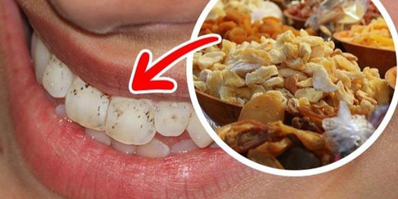 Những nguyên nhân không ngờ khiến răng bị ê buốt mà bạn không hề hay biết - Ảnh 1.