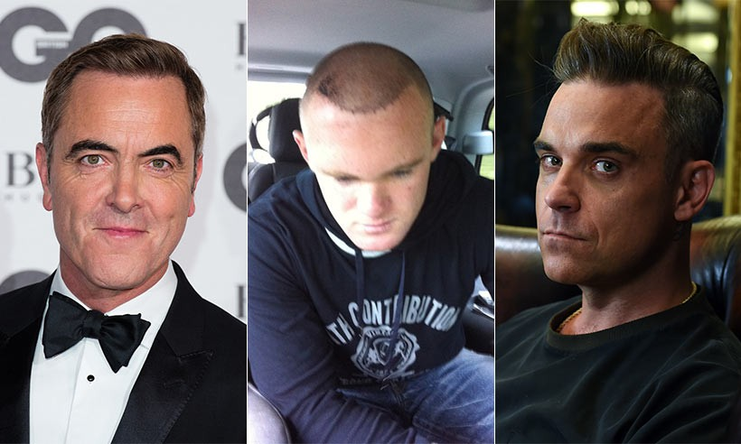 Chi gần 200 triệu đồng để cấy tóc chữa hói đầu, doanh nhân Ấn Độ chết thảm vì dị ứng - Ảnh 2.