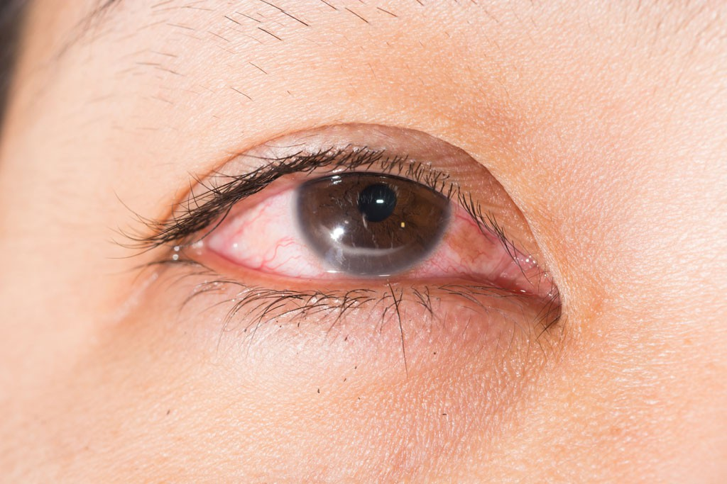 Nhiều người gặp phải tình trạng ngứa khóe mắt nhưng không biết rõ nguyên nhân đến từ đâu - Ảnh 2.