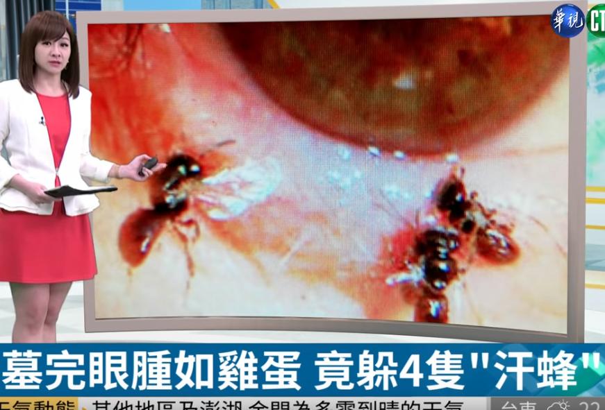 4 con ong sống ký sinh trong mí mắt cô gái, uống nước mắt vật chủ để sinh tồn - Ảnh 1.