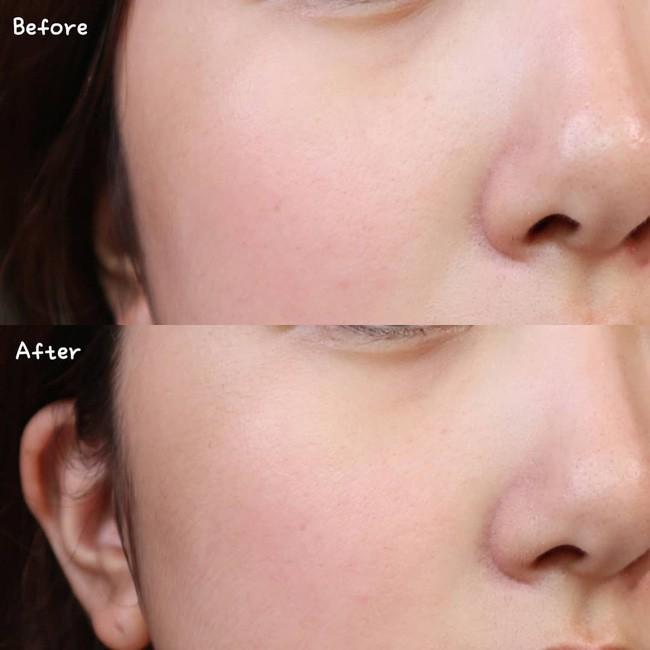 Làn da từ đầy tỳ vết thành mịn đẹp xuất sắc nhờ phương pháp peel da, nhưng không chú ý những điều sau thì hỏng bét - Ảnh 2.