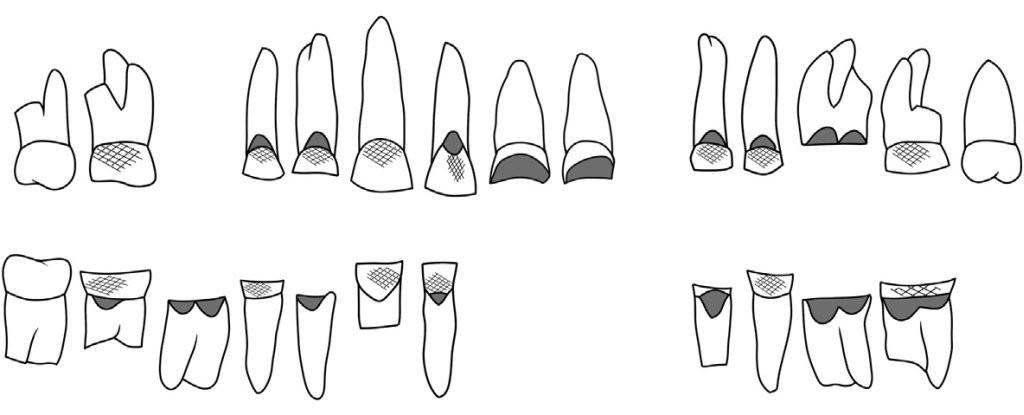 Từ một cái răng 4000 năm tuổi, khoa học giải quyết được câu hỏi khó nhất trong ngành khảo cổ: người chết đã từng làm nghề gì? - Ảnh 1.