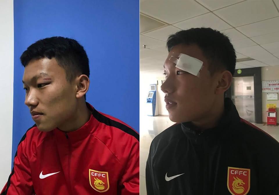 Sự cố cầu thủ U17 Hà Nội tung đấm vào mặt đồng nghiệp: BTC giải đấu ở Trung Quốc ra án phạt nặng - Ảnh 2.