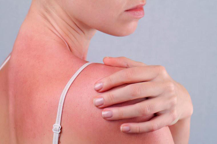 Ngộ độc ánh nắng mặt trời - tình trạng nguy hiểm cần được nhận biết ngay - Ảnh 2.