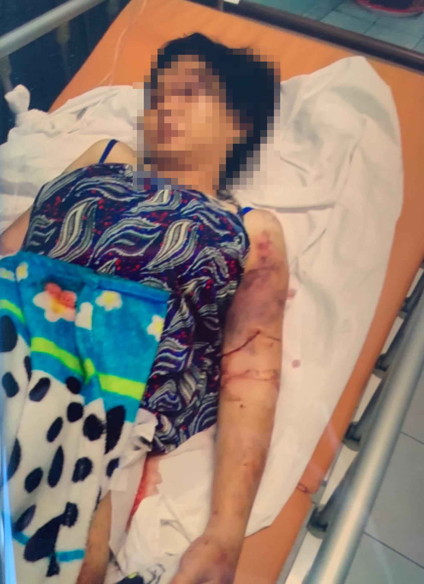 Vụ cô gái mang thai 6 tháng bị bắt cóc, đánh đập khiến thai nhi tử vong ở Sài Gòn: Kinh hoàng màn tra tấn như thời Trung cổ - Ảnh 1.