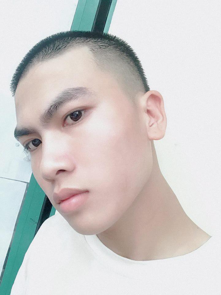 Tai nạn của thanh niên chứng minh một trong những sai lầm lớn của đời người chính là cắt tóc theo thần tượng - Ảnh 2.