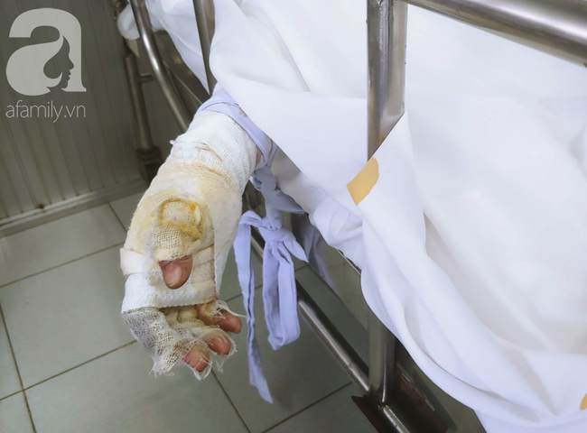 Vụ người phụ nữ nghi dùng xăng đốt chồng rồi tự thiêu: Người chồng liên tục gọi vợ trong phòng chăm sóc đặc biệt - Ảnh 4.