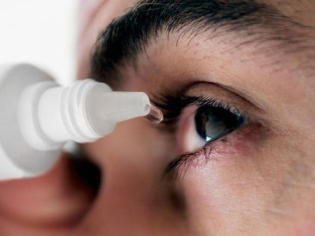 Đau mắt đỏ: Bệnh dễ gặp khi thời tiết sắp chuyển sang nóng bức - Ảnh 4.