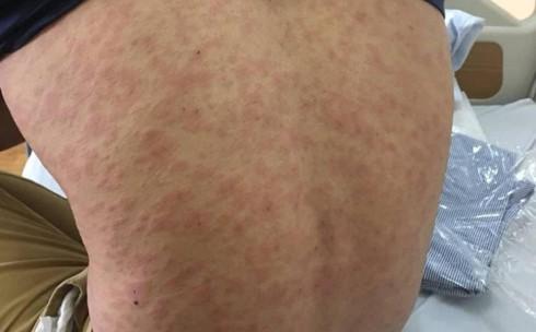 8 dấu hiệu cảnh báo cơ thể nhiễm ký sinh trùng - Ảnh 7.