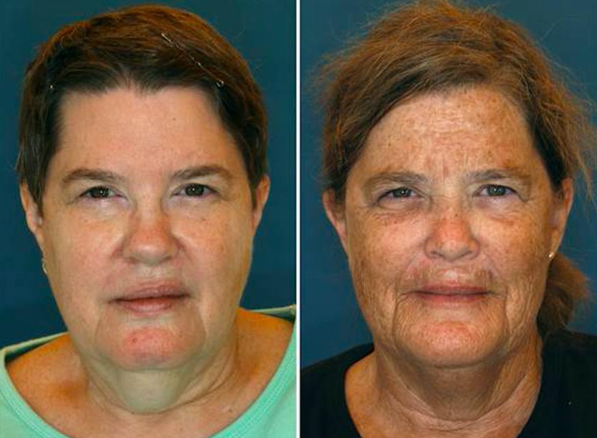 Đây chính là minh chứng cho thấy hậu quả kinh hoàng của làn da nếu bạn không bôi kem chống nắng mỗi ngày - Ảnh 2.