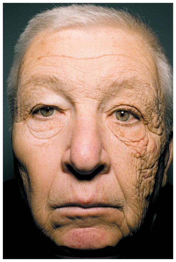 Đây chính là minh chứng cho thấy hậu quả kinh hoàng của làn da nếu bạn không bôi kem chống nắng mỗi ngày - Ảnh 1.