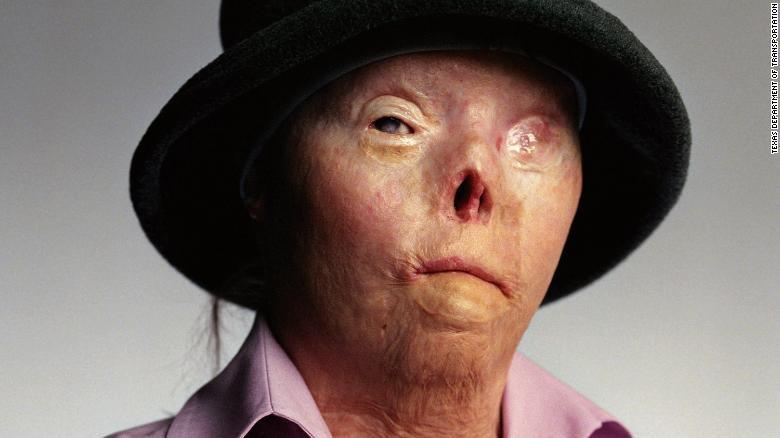 Người phụ nữ là biểu tượng của sự nguy hiểm khi lái xe lúc say xỉn ở Mỹ đã qua đời - Ảnh 2.