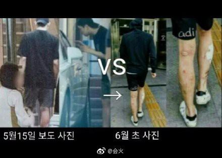 Giữa scandal ma tuý đá, đôi chân lở loét, chi chít mụn phồng rộp của Yoochun trở thành tiêu điểm nóng trên Weibo - Ảnh 3.