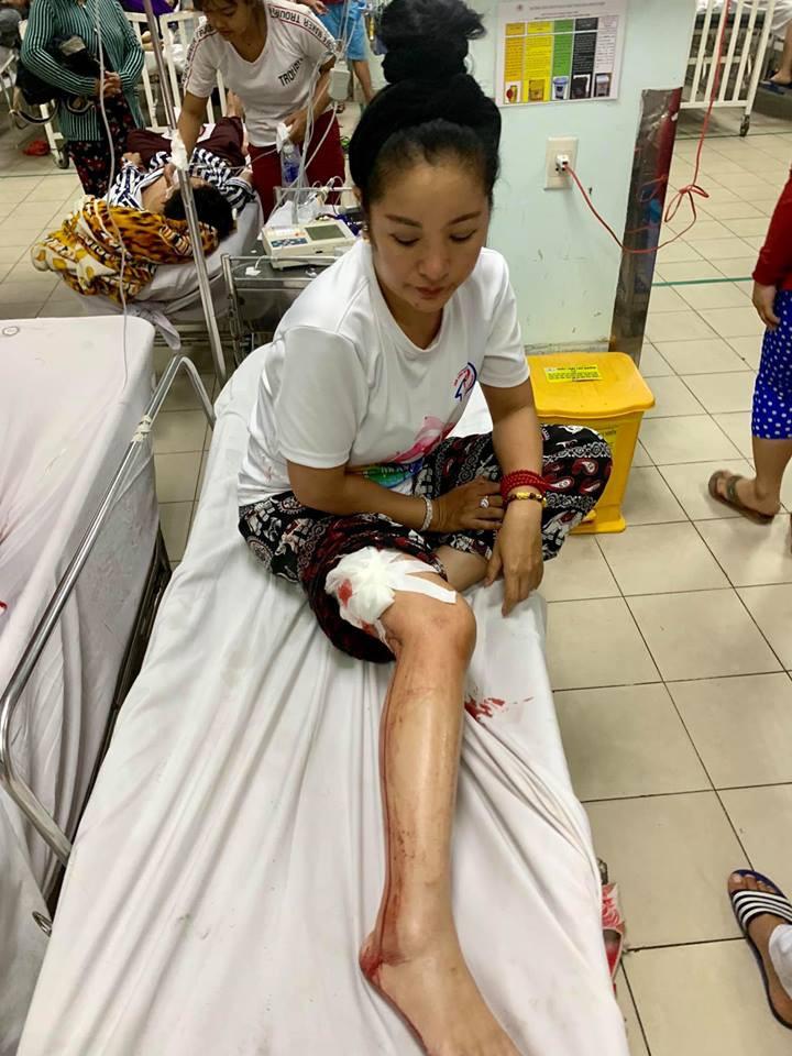 Diễn viên hài Thúy Nga gặp tai nạn chảy đầy máu chân, phải nhập viện khâu 10 mũi - Ảnh 1.