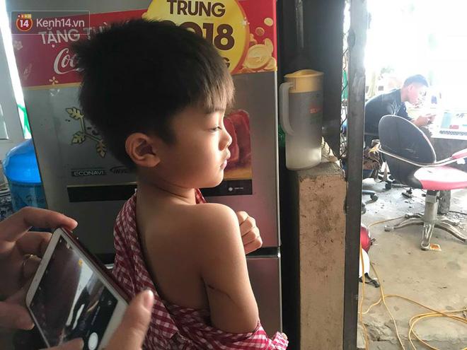 Ảnh: Cận cảnh đàn chó hung dữ cắn bé trai 7 tuổi tử vong ở Hưng Yên