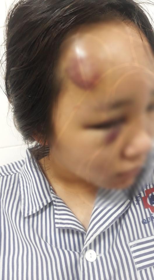 Nữ sinh ở Quảng Ninh nói lý do mình bị đánh nhập viện: Vì hẹn nhóm nữ sinh các trường khác để giải quyết mâu thuẫn trước đó - Ảnh 1.