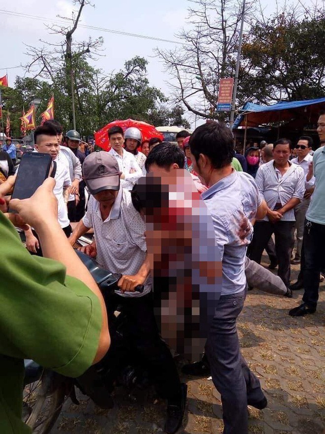 Vụ chủ nhà bị đánh nhập viện vì 7 người đi vệ sinh trả 5.000 đồng: Không có tiền hãy xin một câu - Ảnh 2.