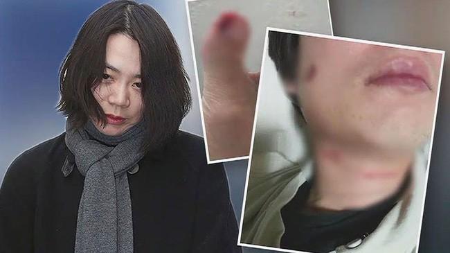 Korean Air: Gia tộc tai tiếng gắn liền với loạt bê bối bạo hành, lạm quyền và ức hiếp kẻ yếu gây rúng động Hàn Quốc - Ảnh 14.
